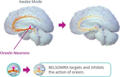 BELSOMRA® (suvorexant) C-IV Is Thought to Block Orexin From Sending Wake Signals to Other Parts of the Brain, Which Could Be Keeping You From Sleeping